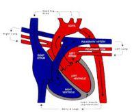 Hình ảnh Hẹp eo động mạch chủ tại eo, ngay dưới động mạch dưới đòn trái