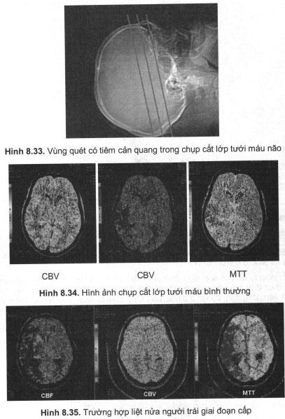 Hình ảnh chụp cắt lớp