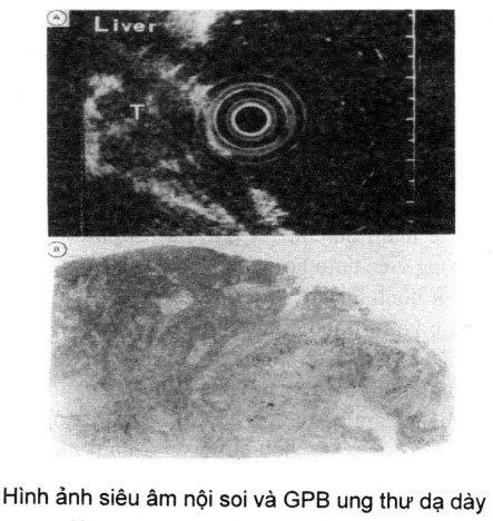 Hình ảnh siêu âm nội soi