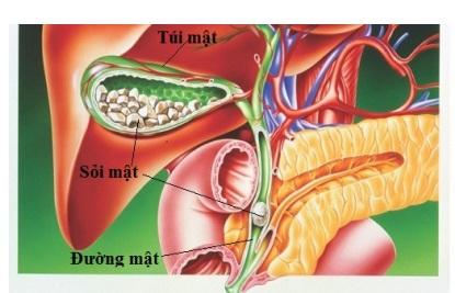 Triệu chứng và điều trị sỏi mật
