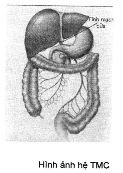 Triệu chứng và điều trị hội chứng tăng áp lực tĩnh mạch cửa
