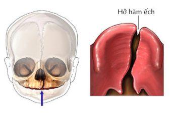 Hở hàm ếch