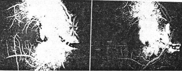 Chụp mạch huỳnh quang