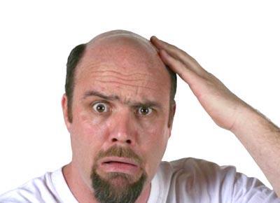 Hói đầu – Triệu chứng bệnh gì, phải làm sao