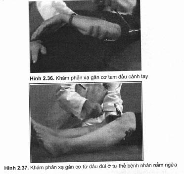 Khám phản xạ gân cơ