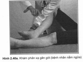 Khám phản xạ gân gót
