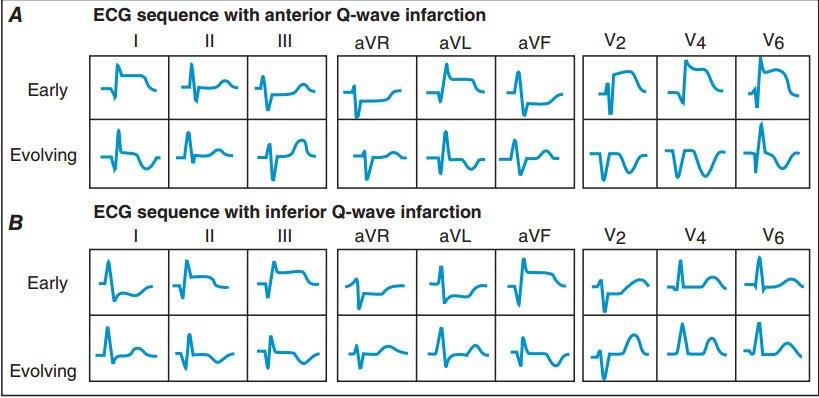 Sự thay đổi tuần tự của khử cực và tái cực trong nhồi máu cơ tim