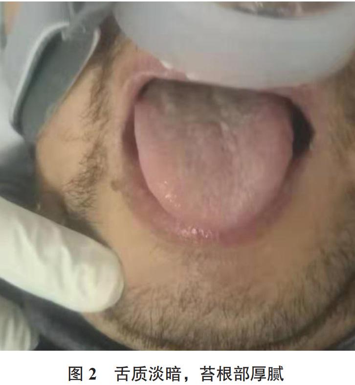 Hình ảnh lưỡi của bệnh nhân Covid - 19