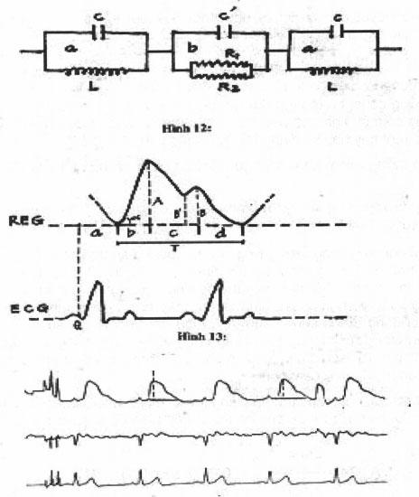 Phương pháp ghi lưu huyết não (REG)