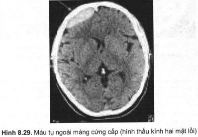 Phương pháp chụp cắt lớp vi tính sọ não