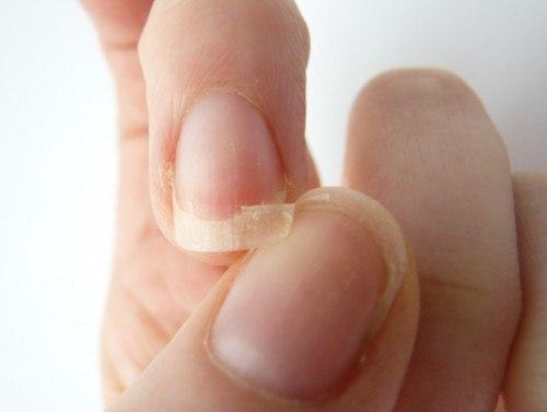 Móng tay khô, dễ gãy là bệnh gì?