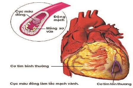 Làm gì để phòng nhồi máu cơ tim?