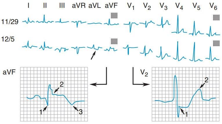 Nhồi máu cơ tim thành dưới cấp. ECG