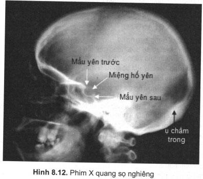Chẩn đoán X quang sọ não