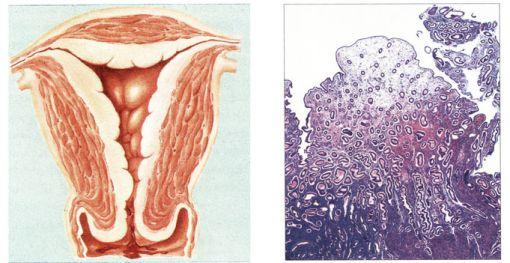 Quá sản nội mạc tử cung