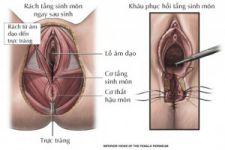 Rách âm đạo - tầng sinh môn và kỹ thuật khâu