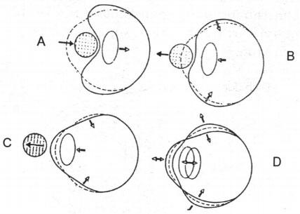 Bốn giai đoạn biến dạng nhãn cầu