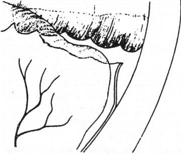 dịch kính có đứt chân võng mạc