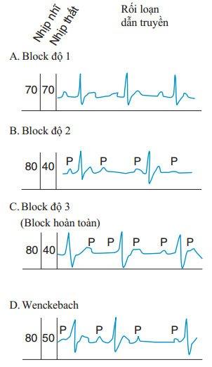 Rối loạn nhịp chậm – nhịp tim chậm