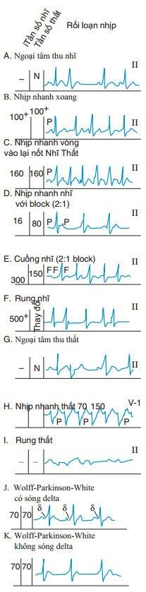 Rối loạn nhịp nhanh – nhịp tim nhanh