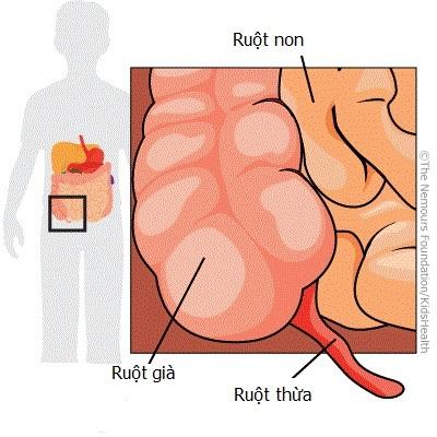 Viêm ruột thừa – Nguyên nhân, triệu chứng, biến chứng, điều trị