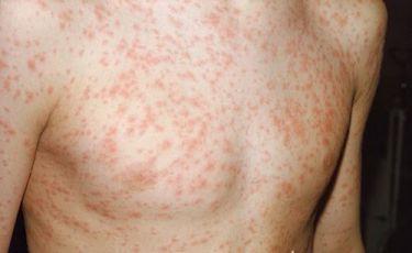 sốt phát ban thường xuất hiện ở trẻ nhỏ