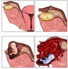 Thai ngoài tử cung ở đoạn bóng vòi tử cung