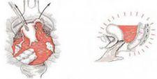 Thai ngoài tử cung tràn ngập máu ổ bụng