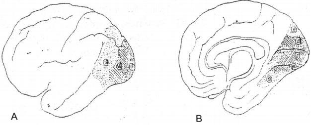 vùng thị giác của vỏ não.