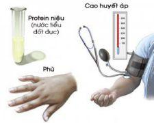 Cao huyết áp, phù và protein niệu trong tiền sản giật
