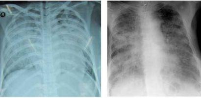 Hình ảnh tổn thương phổi ở người bệnh nhiễm cúm A HiNi