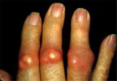 Các hạt tophi trong bệnh gout