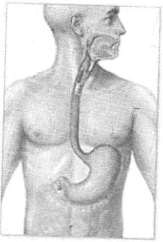 Triệu chứng và điều trị bệnh trào ngược dạ dày – thực quản