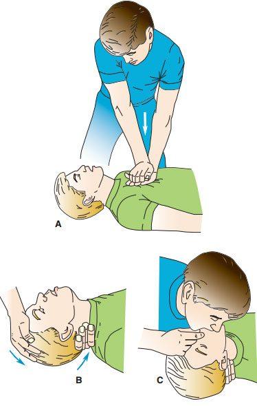 Các bước chính trong hồi sức tim phổi
