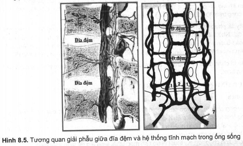 Phương pháp chụp tĩnh mạch ống sống thắt lưng