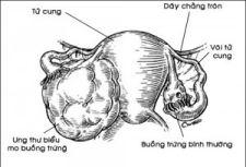 Ung thư biểu mô buồng trứng
