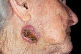 Biểu hiện, hình ảnh chẩn đoán và điều trị ung thư da