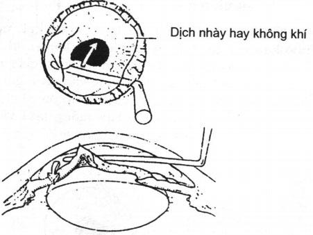 Kỹ thuật mống mắt trở lại tiền phòng