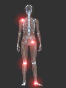 PHÁC ĐỒ CHẨN ĐOÁN VÀ ĐIỀU TRỊ VIÊM KHỚP DO VI TRÙNG  (Infectious Arthritis)