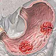 Viêm loét dạ dày tá tràng nên ăn gì để khỏi bệnh