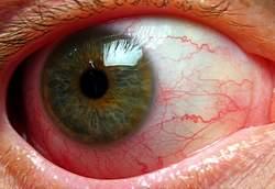 Những bệnh mắt do nguyên nhân dị ứng