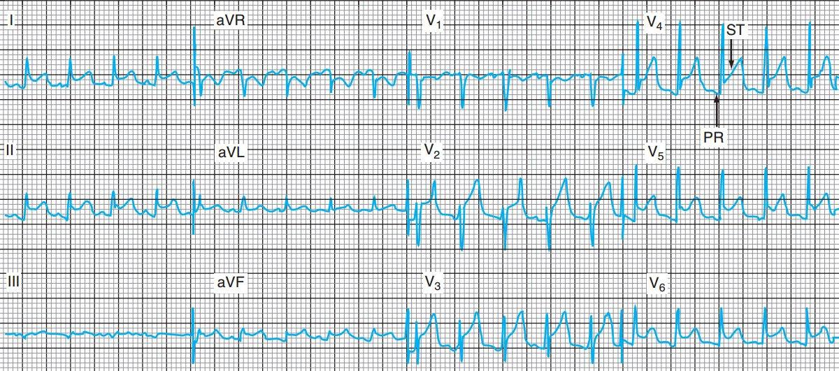 Điện tâm đồ trong viêm màng ngoài tim cấp