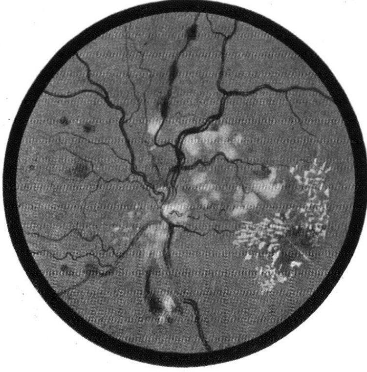 Các bệnh tim mạch và máu biểu hiện ở mắt