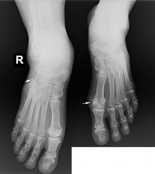 x-quang-benh-gut1