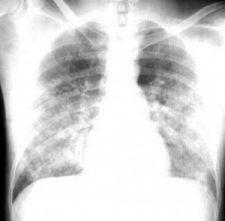 X quang phù phổi cấp