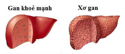 Chế độ ăn uống cho người bị bệnh xơ gan
