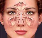 Viêm xoang (Inflamed Sinuses) cũng là nguyên nhân dẫn tới nhức đầu
