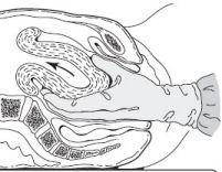 Ðờ tử cung và xử trí ép tử cung bằng 2 tay